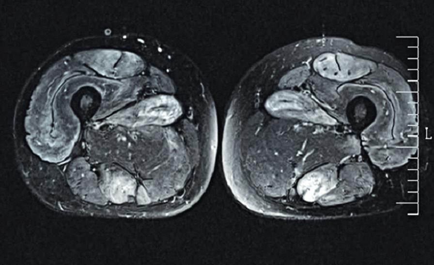 Magnetická rezonance (STIR) svalů stehen.