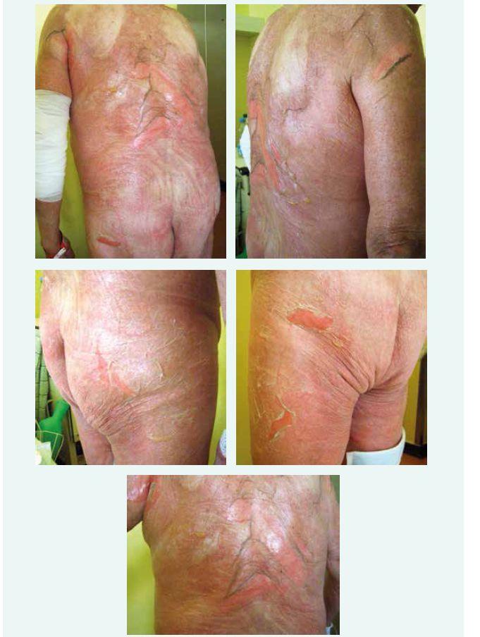 – 5. Typický obraz toxické epidermální nekrolýzy. Dokumentace z fyzikálního vyšetření pacienta.
