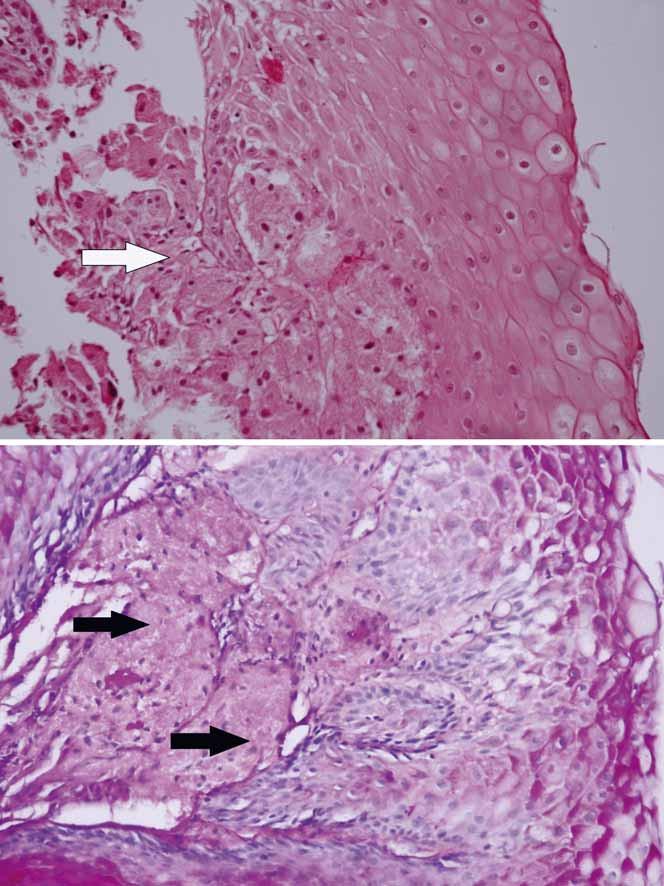 Histologický obraz granularnobunkového tumoru u prezentovaného pacienta – granulárnobunkový tumor pažeráka (šípka) tvorili skupiny buniek s objemnou zrnitou eozinofilnou cytoplazmou (A) s malými ovoidnými hyperchrómnymi jadrami a s PAS (periodic acid schiff ) pozitivitou (B).  Fig. 3. Histology of granular cell tumour in the presented patient – oesophageal granular cell tumour (arrow) consisted of nests of cells with sizeable granular eosinophilic cytoplasm (A) with small ovoid hyperchromatic nuclei with PAS (periodic acid-Schiff ) positivity (B). A. haematoxylin/eosin ×200; B. PAS ×200.