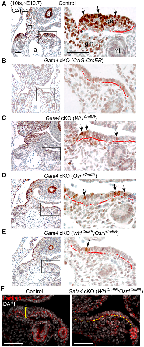<i>Gata4</i> is required for thickening of coelomic epithelium that gives rise to genital ridge.