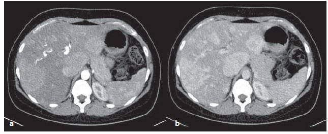 CT vyšetření – mnohočetné zánětlivé adenomy v arteriální (a) a venózní (b) fázi. Sytí se v arteriální fázi, ve venózní fázi sycení přetrvává. Fig. 4. CT scans – multiple inflammatory adenomas in arterial (a) and venous (b) phase. Adenomas feed contrast medium in the arterial phase, in venous phase saturation persists.
