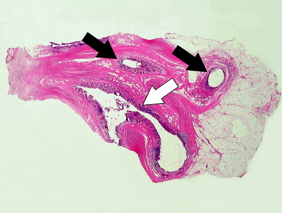 Obr. 3. Histopatologický obraz divertikulózy a divertikulitídy apendixu vermiformis, farbenie HE, zväčšenie: a) 4x b)40x a) Histotopogram – biela šípka: lúmen apendixu, čierne šípky : lúmeny divertiklov Pic. 3. Histopathological image of diverticulosis and diverticulitis of appendix vermiformis, coloring HE, enlargement a) 4x b) 40x c) 4x d) 40x a) Histotopogram – white arrow: lumen of appendix, black arrows: lumens of diverticles