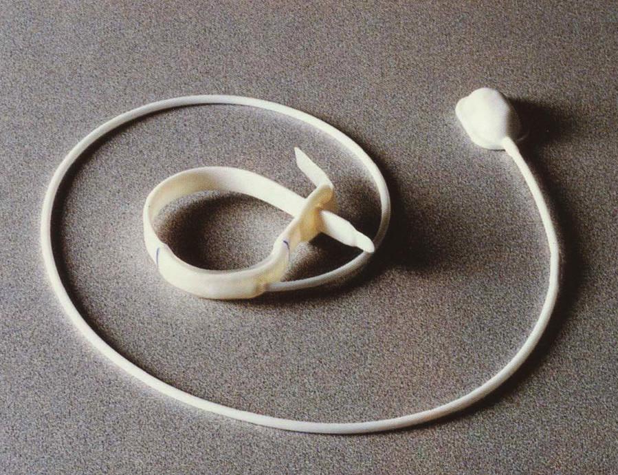 Lap-Band – původní verze Fig. 1. Lap-Band – old version
