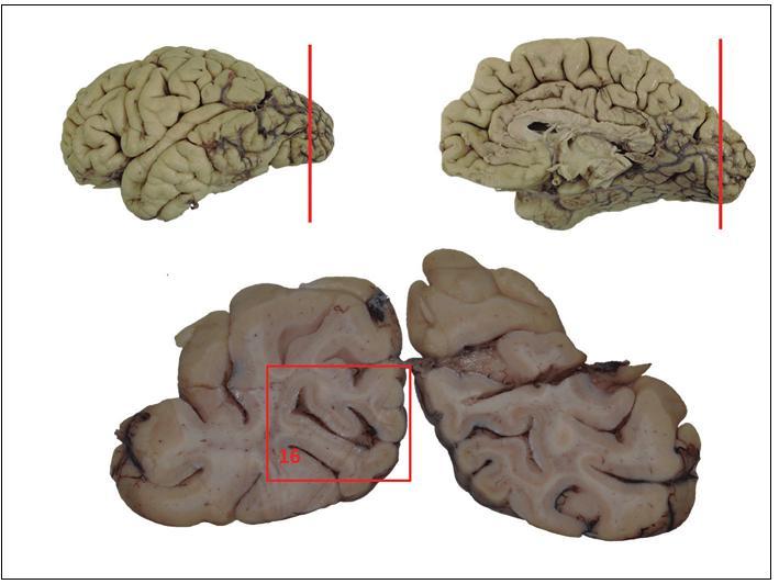 Schéma základního odběru při pitvě mozku.