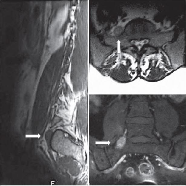 Vyšetření magnetickou rezonancí v T1, T2 vážených projekcích a po podání kontrastní látky – nález před operací.
