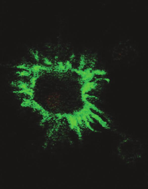 Typická morfologie DC při značení povrchovou protilátkou proti CD80 a pozorování v konfokálním mikroskopu Fig. 1. Typical DC morphology upon marking with anti- CD80 superficial antibody, observed using a confocal microscope