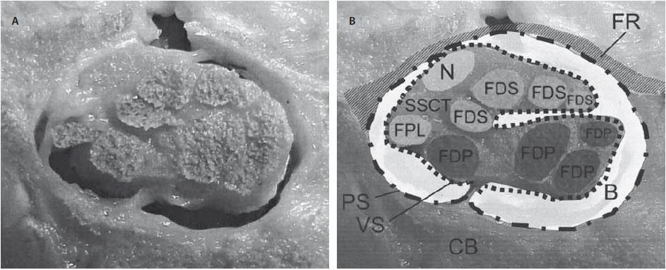 Průřez karpálním tunelem u člověka v úrovni os hamatum (A). Schématický popis struktur uvnitř karpálního tunelu (B) [13]. Retinaculum flexorum (FR) a karpální kosti (CB) okolo karpálního tunelu a uvnitř karpálního tunelu nervus medianus (N), šlacha m. flexor pollicis longus (FPL), šlacha m. flexor digitorum profundus (FDP), šlacha m. flexor digitorum superficialis (FDS), bursa (B), parietální vrstva synoviální pochvy (PS), viscerální vrstva synoviální pochvy (VS). Fig. 1. Transverse cut section through a human carpal tunnel at the hamate level (A). Schematic overview showing the structures within the carpal tunnel (B) [13]. The flexor retinaculum (FR) and carpal bones (CB) surrounding the carpal tunnel and within the carpal tunnel are the median nerve (N), flexor pollicis longus (FPL), flexor digitorum profundus (FDP) and flexor digitorum superficialis (FDS) tendons, bursa (B), subsynovial connective tissue – parietal synovial (PS) and visceral synovial (VS) layer.