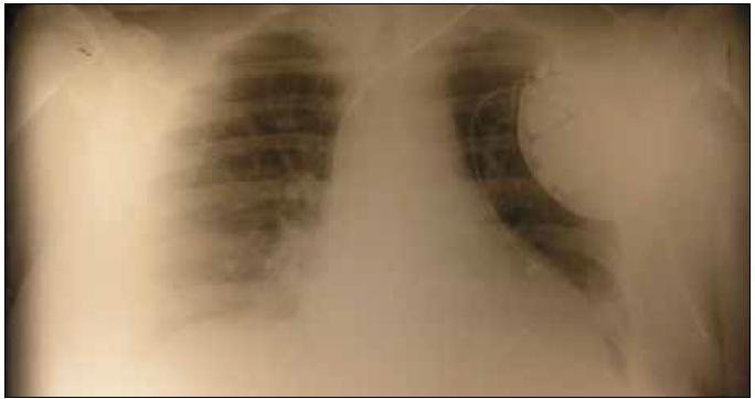 Dilatácia srdca, ICD so stimulačnými elektródami.