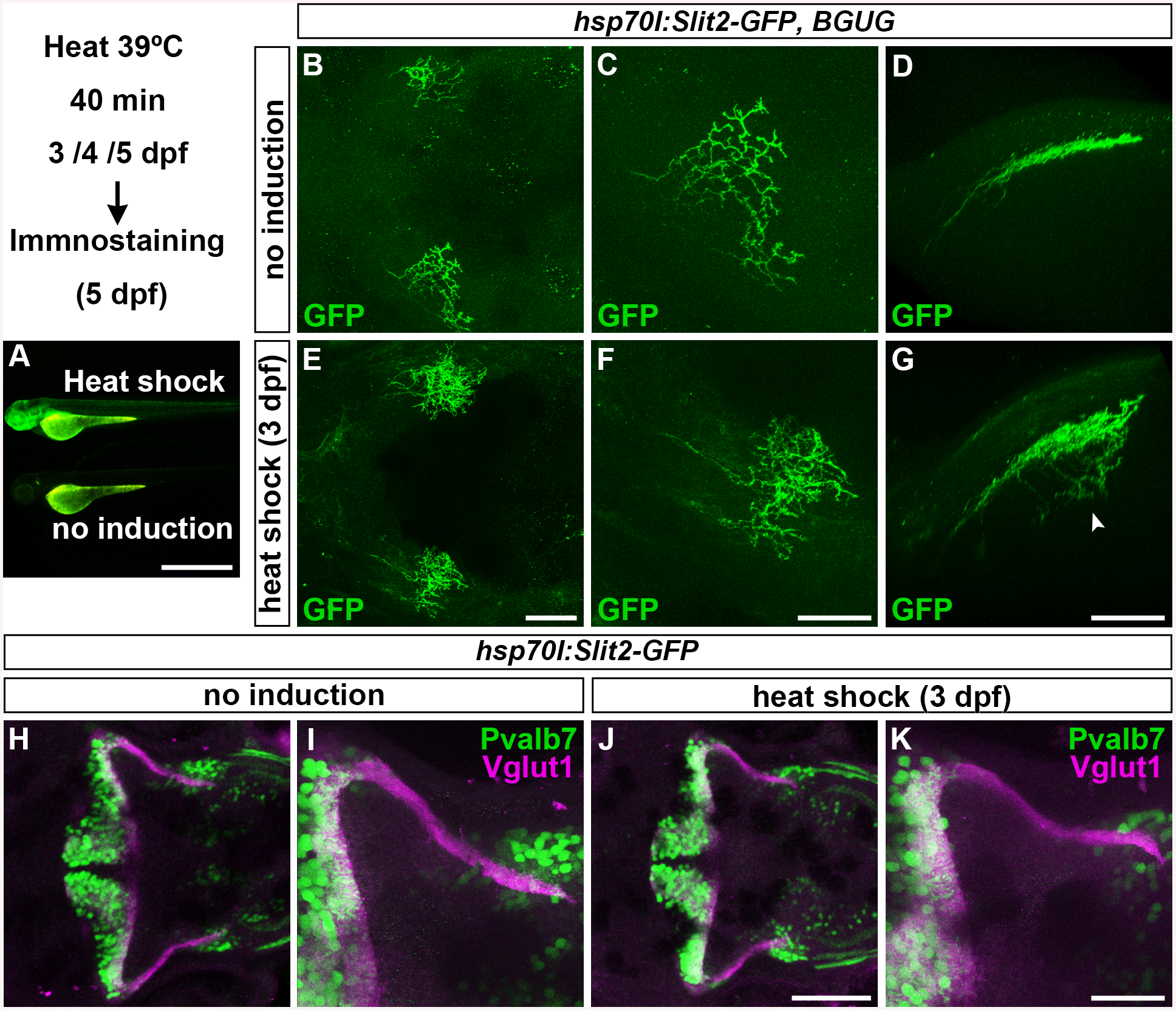 Slit may not be involved in the axogenesis of GCs.