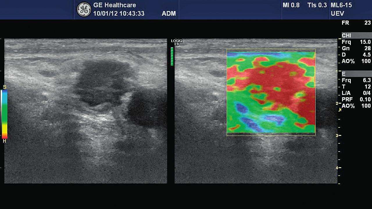 Strain elastografie – obraz metastázy bronchogenního karcinomu do supraklavikulárních uzlin u 67leté pacientky; velmi významný podíl tuhých okrsků (červené, elastografické skóre 5)