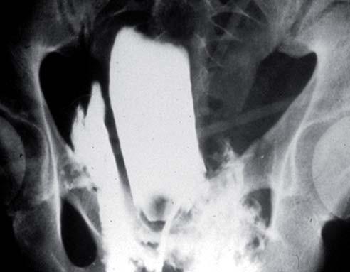 Cystografie zobrazující extraperitoneální rupturu močového měchýře.