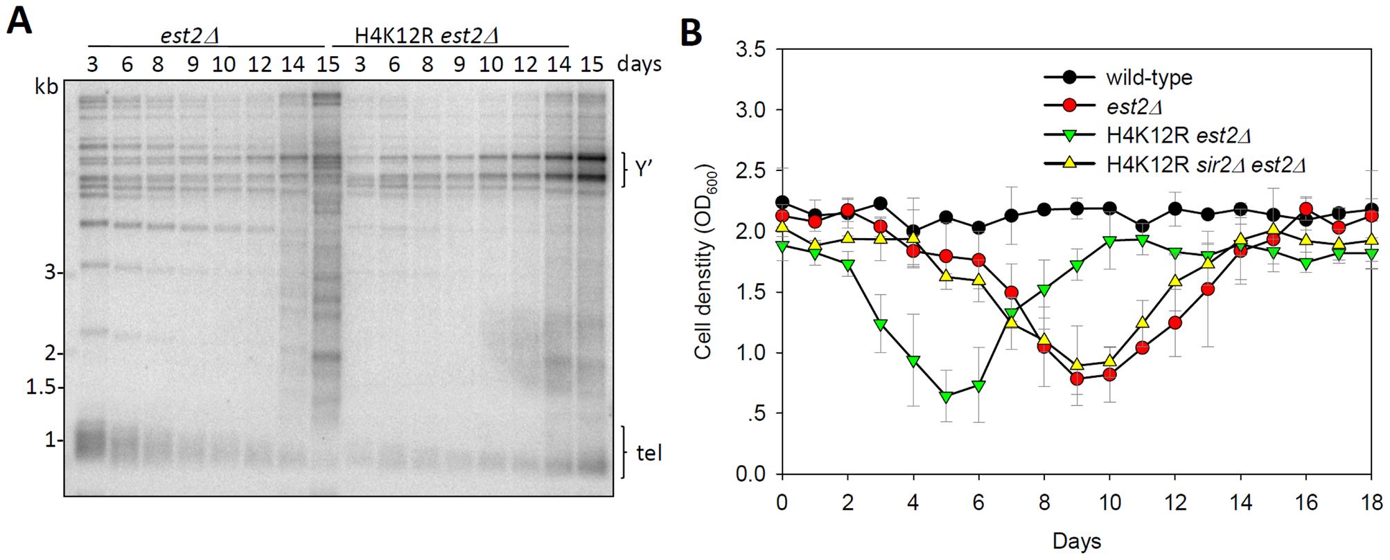 Histone H4K12 acetylation regulates telomere recombination.