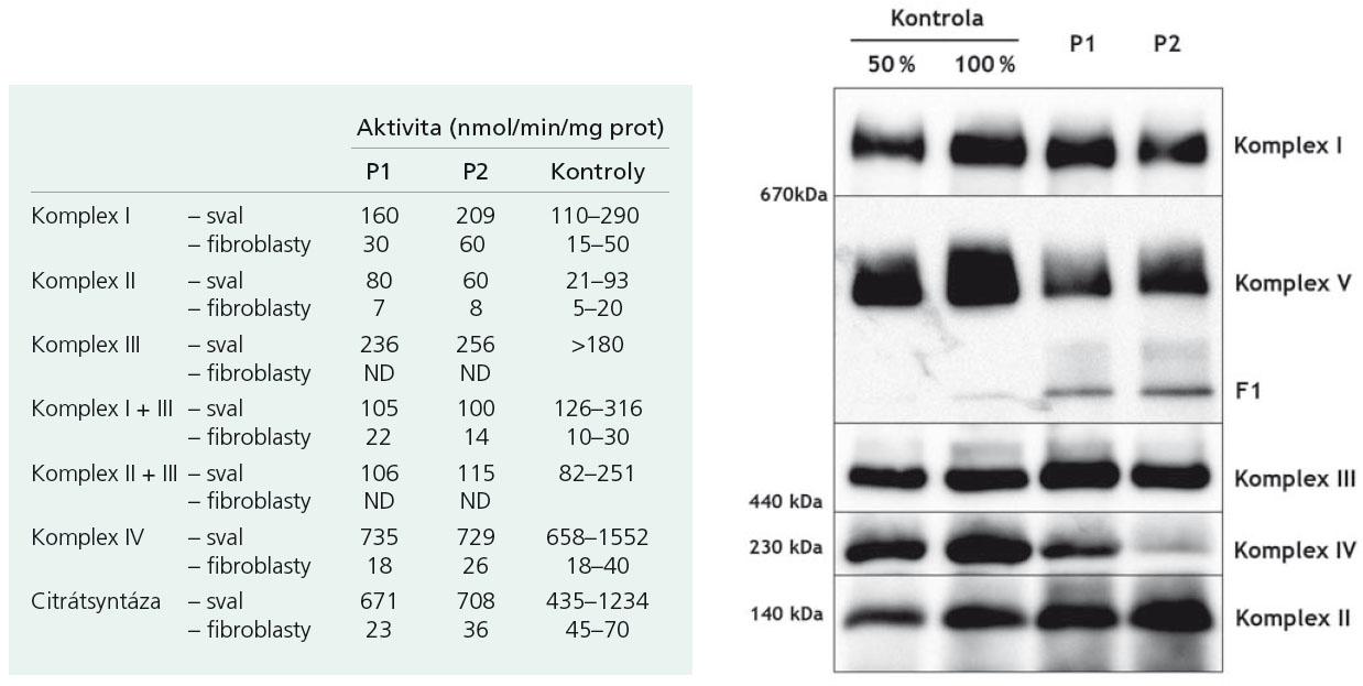 Specifické enzymové aktivity ve svalu a kulturách kožních fibroblastů, kde byla změřena hraniční hodnota komplexu I + III ve svalu u pacienta 1 (P1) a 2 (P2) (a).