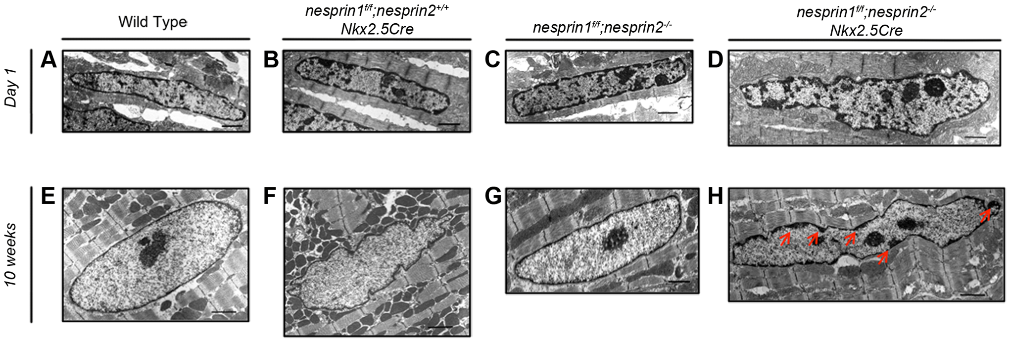 Examination of cardiomyocyte nuclear ultrastructure in response to loss of Nesprin 1 and/or 2.