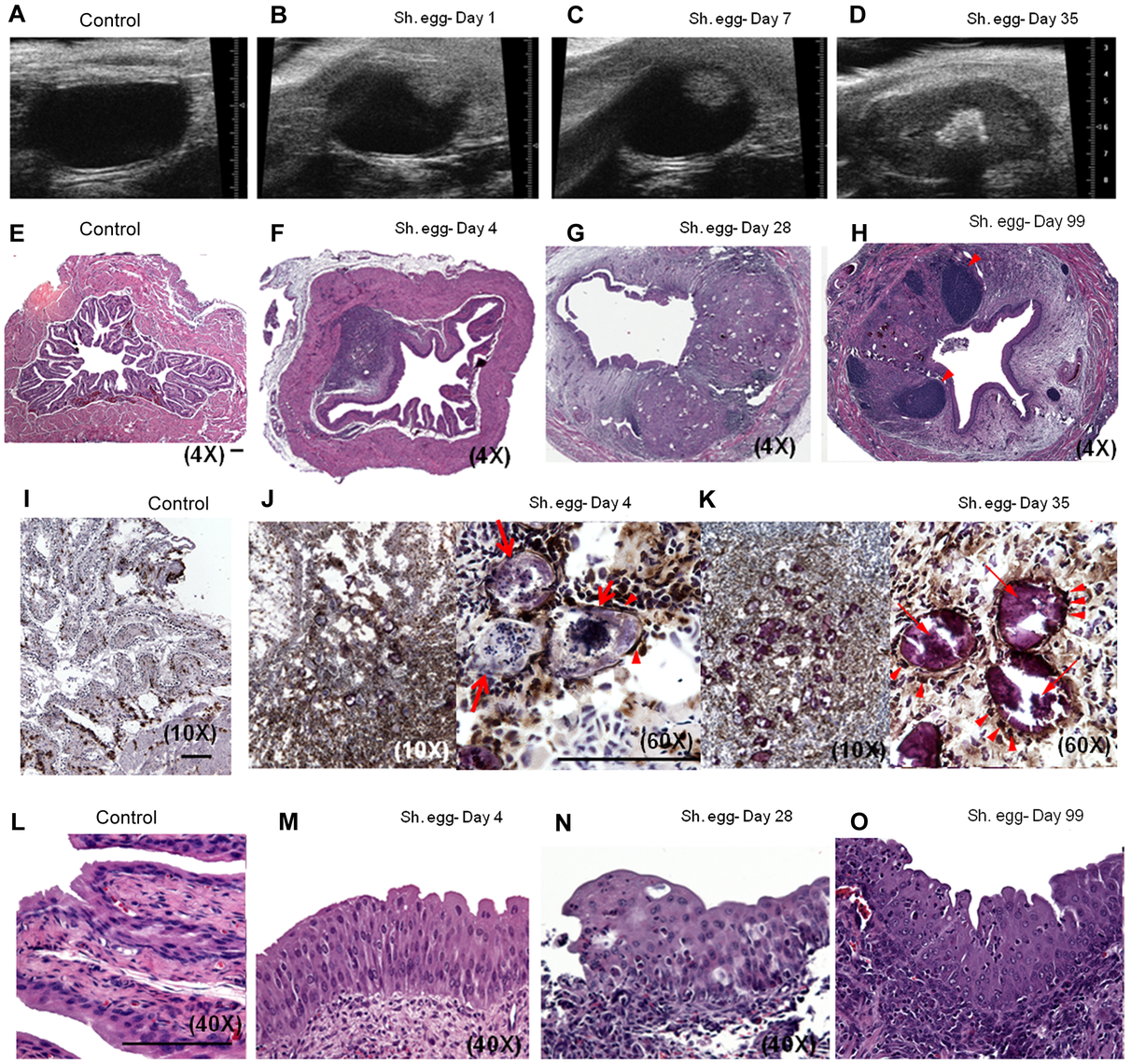 Bladder wall injection of <i>S. haematobium</i> eggs results in synchronous granuloma formation.