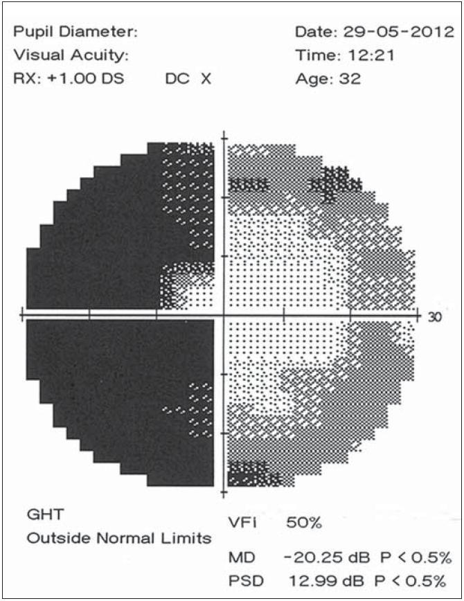 """Perimetrické vyšetření levého oka devět dní po úrazu, temporální hemianopsie s centrální """"úsporou""""."""