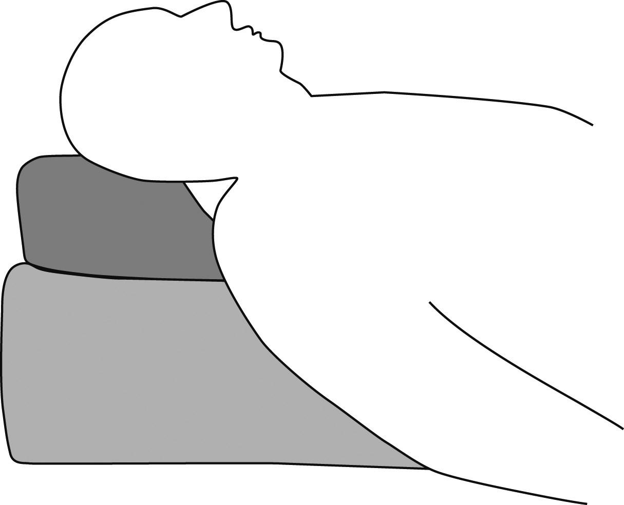 Tzv. ramping position