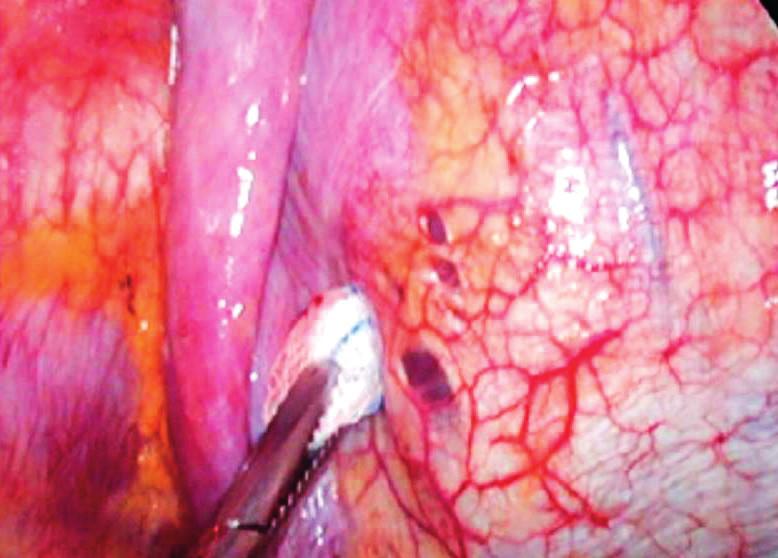 Peroperační nález tří malých otvorů v pars membranacea endometriózy, ale bývají označovány také jako bránice, které jsou spojovány s diagnózou katameniálního PNO