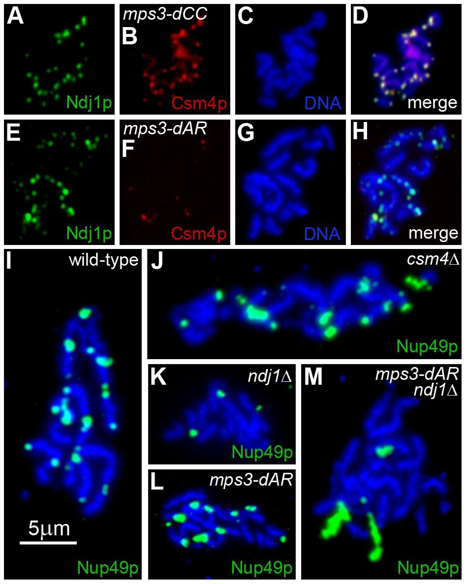 Telomere association with Ndj1 and Csm4, but not with the nuclear envelope, is diminished in <i>mps3-dAR</i>.