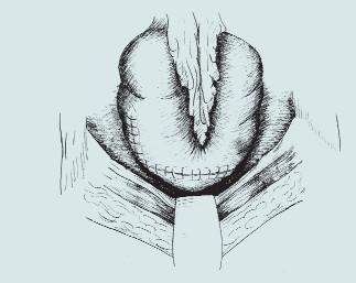 Patch-cystoplastika s použitím colon ascendens. (A – resekční linie močového měchýře a segmentu střeva, B – příprava detubularizovaného segmentu colon, C – sutura okrajů střevního segmentu, D – vytvoření kupole m.m., E – uzavření plastiky nízkotlakého močového měchýře)