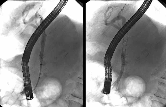 Zavedenie biliárneho plne povlečeného samorozťažného kovového stentu.
