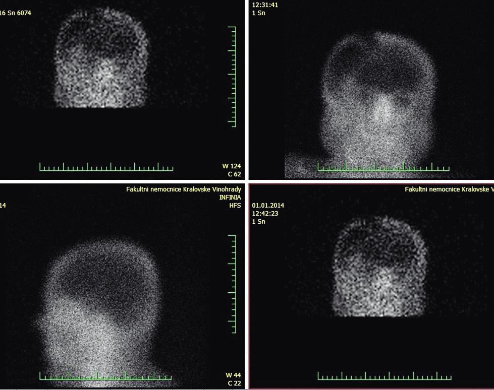 Reziduální průtok při scintigrafii mozku