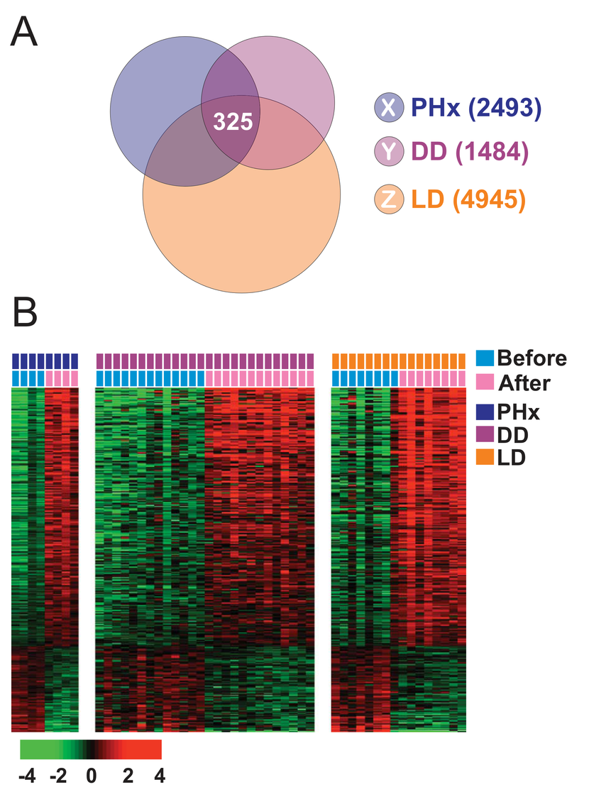 Hepatic injury and regeneration gene expression signature from human liver.