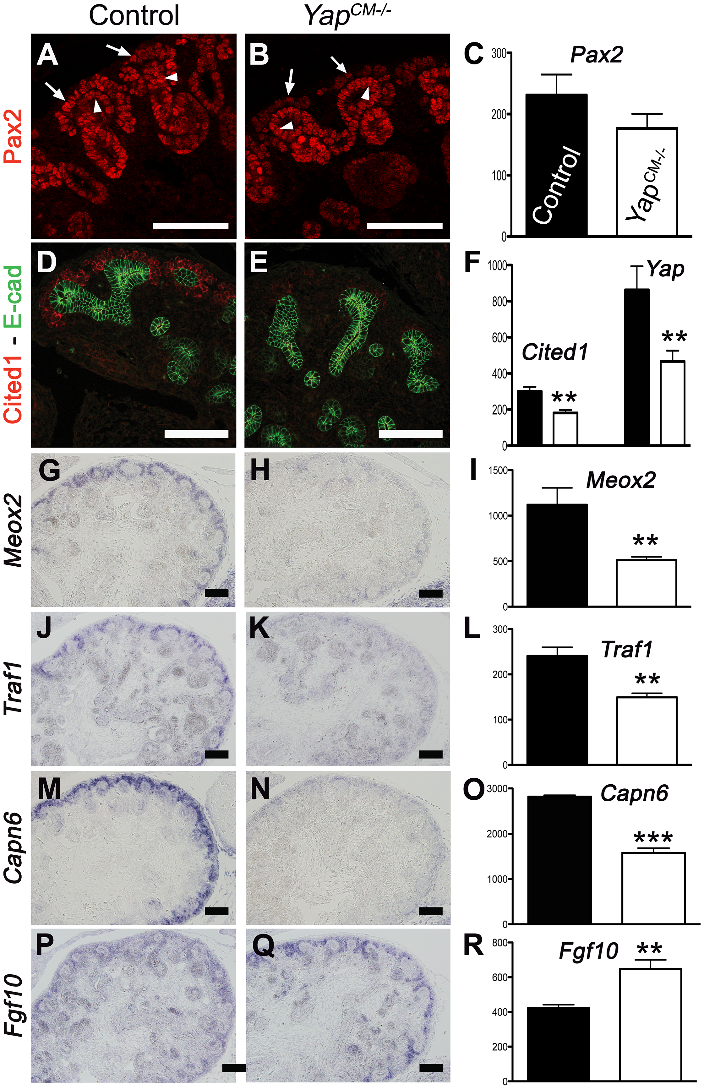 Transcriptional changes in <i>Yap</i> mutant CM progenitors cells.