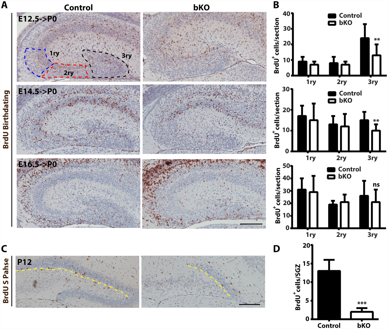 Analysis of neuronal migration in the hippocampus by BrdU labeling.