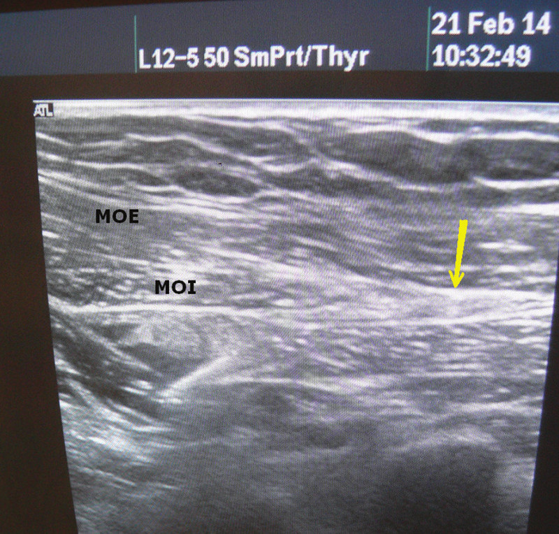 Ultrazvuk břišní stěny