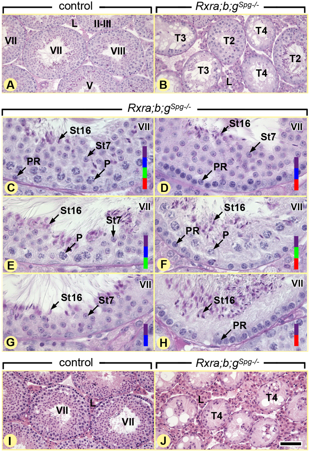 Ablation of RXR in spermatogonia induces age-related testis degeneration.