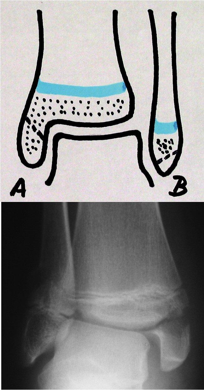 A. Poranění epifýzy 7. Ogdenova typu A a B (schéma). B. Zlomenina epifýzy distální tibie typ Ogden 7A (43t-E/8.1 dle AO klasifikace pro dětský skelet). Intraepifyzární zlomenina apexu tibiálního kotníku tahem kolaterálního tibiálního vazu. Linie lomu nezasahuje do fýzy.