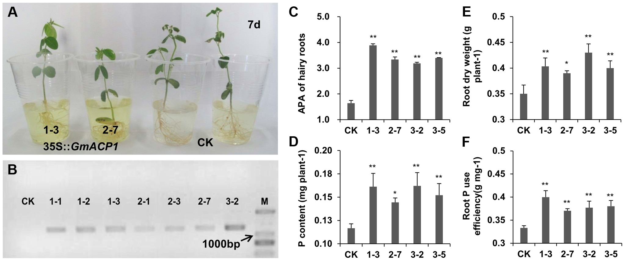 Phenotypes of hairy roots overexpressing <i>GmACP1</i> and control hairy roots (CK) cultured by hydroponics and supplied with 0.5 mM phytate.