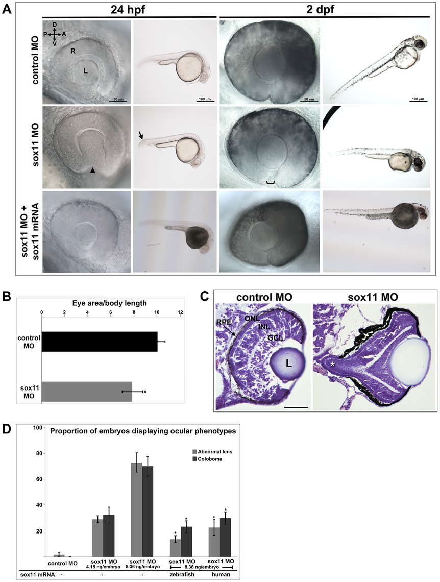 Sox11 knockdown disrupts ocular morphogenesis and causes coloboma in zebrafish.