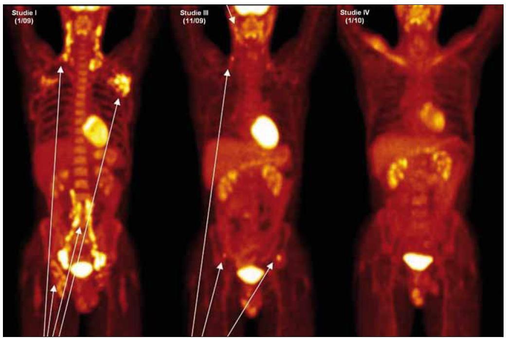 Obr. 2. Přehled sumovaných obrazů (MIP) rozložení <sup>18</sup>F-FDG v trupu. Aktivitu v zachycené mozkové kůře, slinných žlázách, myokardu, žaludku, varlatech, ledvinách a močovém měchýři považujeme za fyziologickou. Studie I (leden roku 2009): jsou patrná četná ložiska patologické akumulace radiofarmaka v krčních uzlinách i periklavikulárně oboustranně, v uzlinách obou axil (více vlevo) a dále i v retroperitoneálních, ilických i tříselných uzlinách oboustranně. Maximální aktivitu detekujeme v ilických uzlinách vpravo (SUV<sub>max</sub> 12,3). Relativně je lehce difuzně vyšší akumulace radiofarmaka v celém zachyceném skeletu. Studie III (listopad roku 2009): jsou patrná drobná ložiska patologické akumulace radiofarmaka v uzlinách submandibulárně vlevo i na obou stranách krku, nově ale 2 ložiska vyšší akumulace radiofarmaka v kyčelních kostech oboustranně.  Studie IV (leden roku 2010): ložiska patologického hypermetabolizmu glukózy tč. nenacházíme, a to ani ve skeletu, v uzlinách krku nebo plicích.