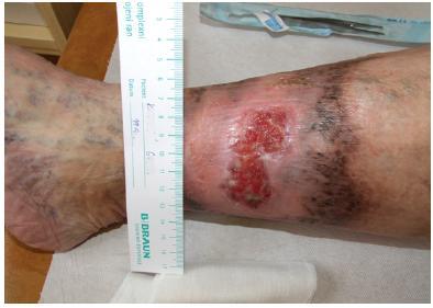 Stagnující ulcerace na bérci vpravo v terénu chronické žilní insuficience