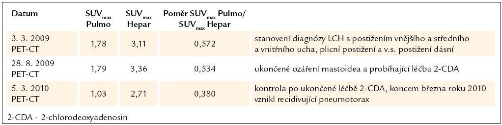 Vývoj plicní aktivity při PET-CT vyšetření u 5. pacienta, nar. 1963.