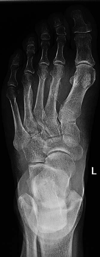 RTG snímek odhalil šikmou (víceúlomkovou) frakturu II. metatarzu s diskrétním zkrácením, lomná linie je dobře zřetelná, tč. bez známek přemostění, tedy čerstvého data. Zesílení kortikalis a nehomogenní struktura diafýz IV. metatarzu, bez přesvědčivé lomné linie – možné potraumatické změny staršího data. Jinak zobrazení kosti bez ložiskových projasnění, typického pro mnohočetný myelom. Osteolytické změny typické pro myelom jsou patrné na diafýze tibie vlevo.