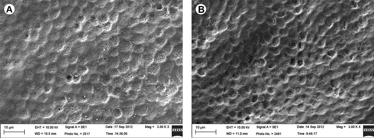 SEM analysis. A: Specimen subjected to cariogenic challenge. The enamel porous surface aspect presents partial dissolution of the aprismatic layer (arrow) (3,000×). B: Specimen subjected to cariogenic challenge and bleaching procedure. The substantial dissolution of the aprismatic layer and increased porosity can be observed, allowing visualization of the enamel prism mouths, forming new channels for dissemination (3,000×).