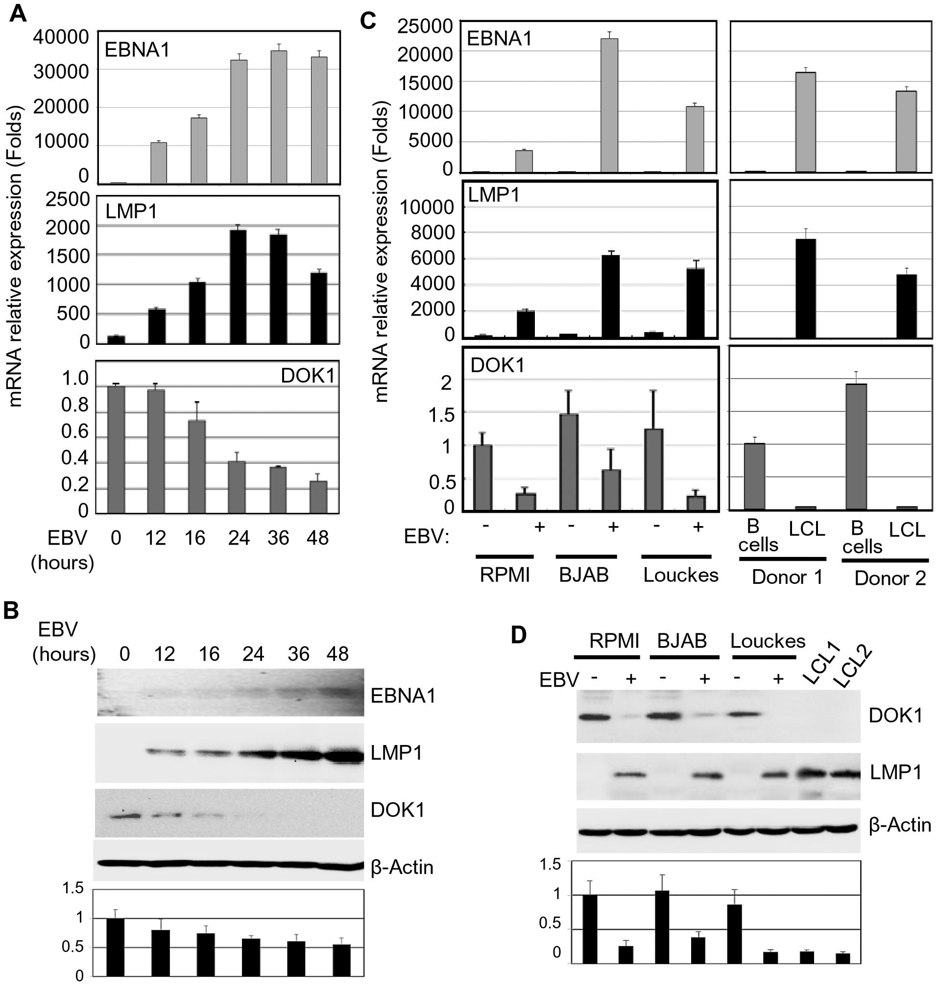 EBV infection in vitro inhibits <i>DOK1</i> gene expression.