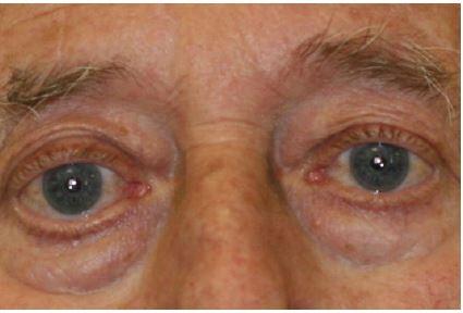 Obr. 1b Pacient s tumorem očnice po systémové léčbě kortikoidy – regrese protruze bulbu.