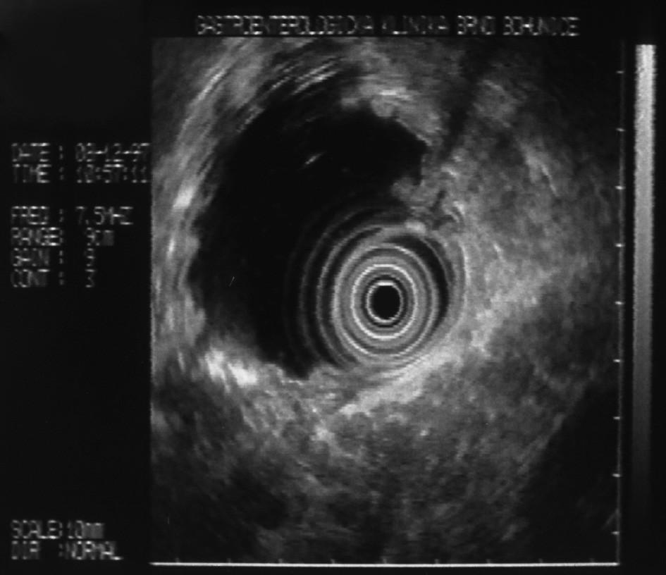 Endosonografický obraz typické lalůčkovité struktury parenchymu slinivky břišní