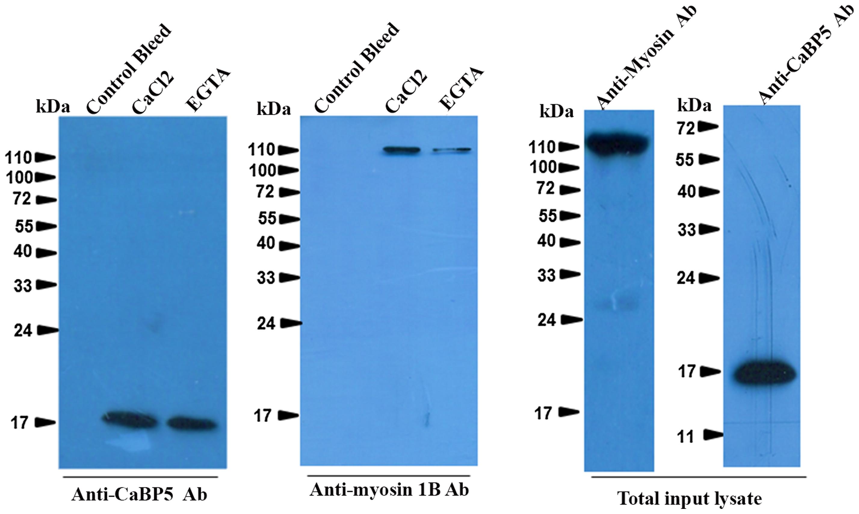 Interaction of EhCaBP5 with myosin 1B.
