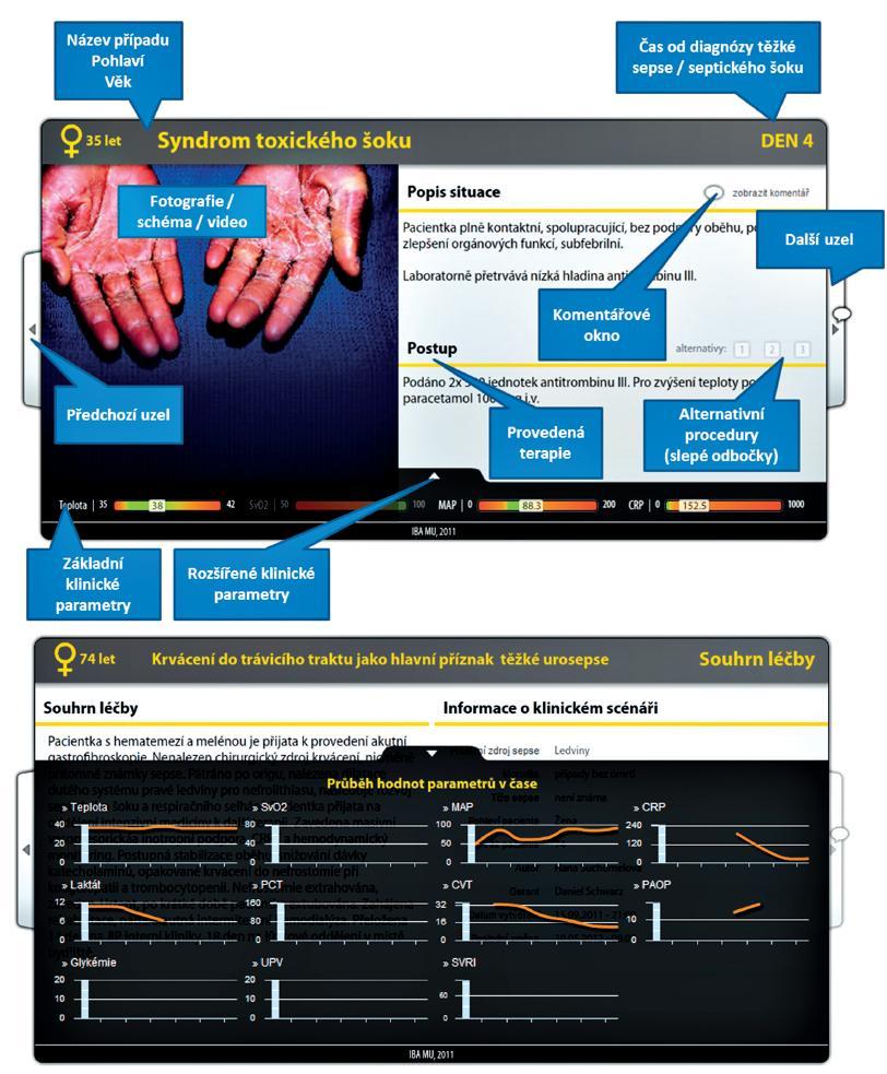 Ukázky z interaktivního přehrávače výukového klinického scénáře Ten se v prohlížeči ukazuje jako objekt obsluhovaný v prostředí Adobe Flash Player.