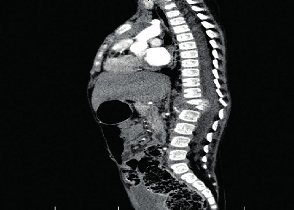 Spondylodiscitída Th12–L1 so zbortením tiel.