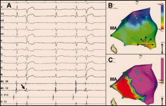 <b>Mapování komorových extrasystol indukujících FK vycházejících z Purkyňových vláken z oblasti dolního fascikulu levého Tawarova raménka pacienta po spodním infarktu myokardu.</b> Tento zdroj naznačuje již 12svodové EKG, které ukazuje extrasystoly s relativně štíhlým QRS komplexem tvaru RBBB (pozitivní QRS komplex ve svodu V1) a osou doleva (pozitivní QRS komplex ve svodech I, aVL). Korelace aktivační mapy (B) s voltážovou mapou (C) ukazuje, že zdrojová oblast komorové ektopie koresponduje s přechodovu zónou na okraji poinfarktové jizvy lokalizované inferoseptálně. Jedná se o pohled v zásadě kolmý na mezikomorovou přepážku, MA označuje mitrálního anulus).