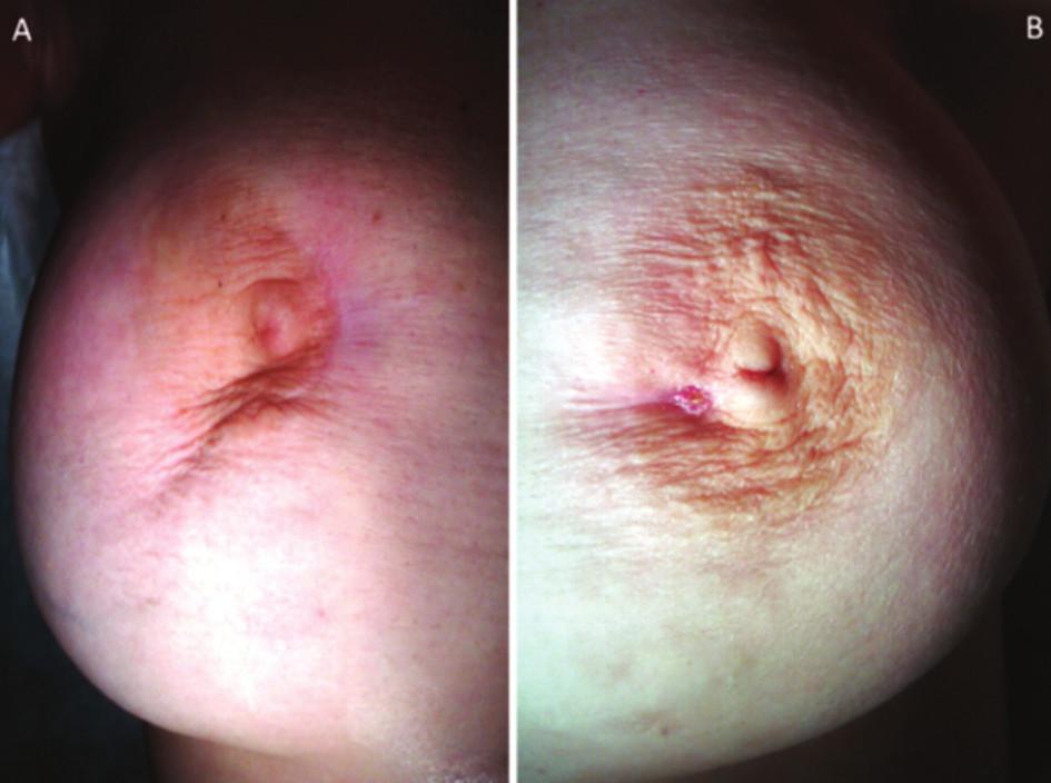 a) pravý prsník – prítomná retrakcia bradavky, periareolárne prítomná jazva po predchádzajúcich incíziách abscesu, b) ľavý prsník – prítomná periareolárna fistula ductus lactiferi a jazva po predchádzajúcich incíziách abscesu Fig. 1: a) right breast – presentation of the nipple retraction, a periareolar scar after previous incisions of abscess; b) left breast – presentation of the periareolar fistula of lactiferous duct and a scar after previous incisions of abscess