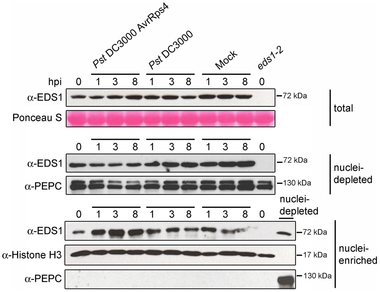 EDS1 nucleo-cytoplasmic distribution after inoculation with virulent and avirulent <i>Pst</i> DC3000 bacteria.
