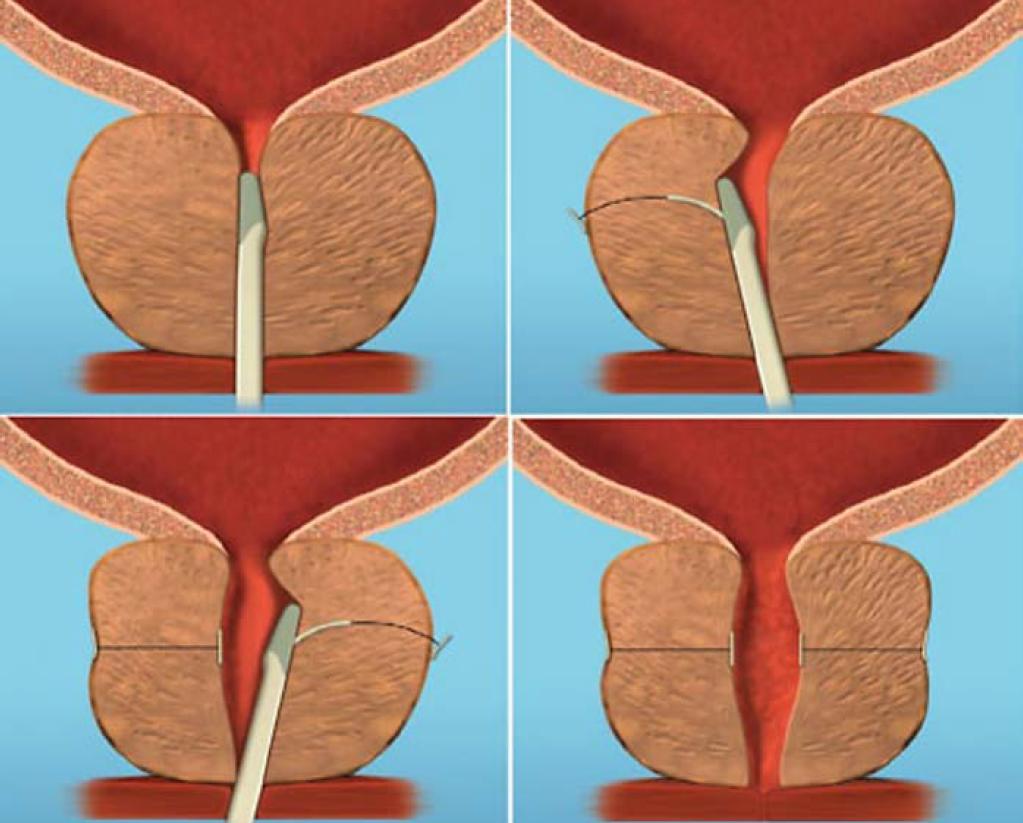Schéma zavedení implantátu UroLift.