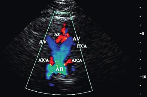 Transforaminální přístup – zobrazení a. vertebralis (AV), a. basilaris (AB), a. cerebelli inferior posterior (PICA), a. cerebelli inferior anterior (IACA), a. spinalis anterior (AS)